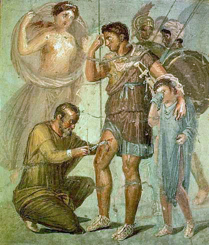 "{""author"":""WolfgangRieger"",""link"":""http%3A//commons.wikimedia.org/wiki/File%3AIapyx_removing_arrowhead_from_Aeneas.jpg"",""descr"":""Раненый%20Эней%20с%20лекарем.%20Museo%20archeologico%20nazionale%20di%20Napoli""}"